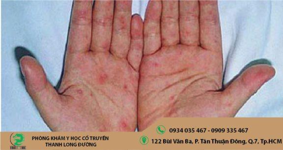 Bệnh chàm khô có nguy hiểm không?